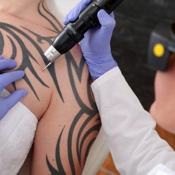 Процедура избавления от татуировки